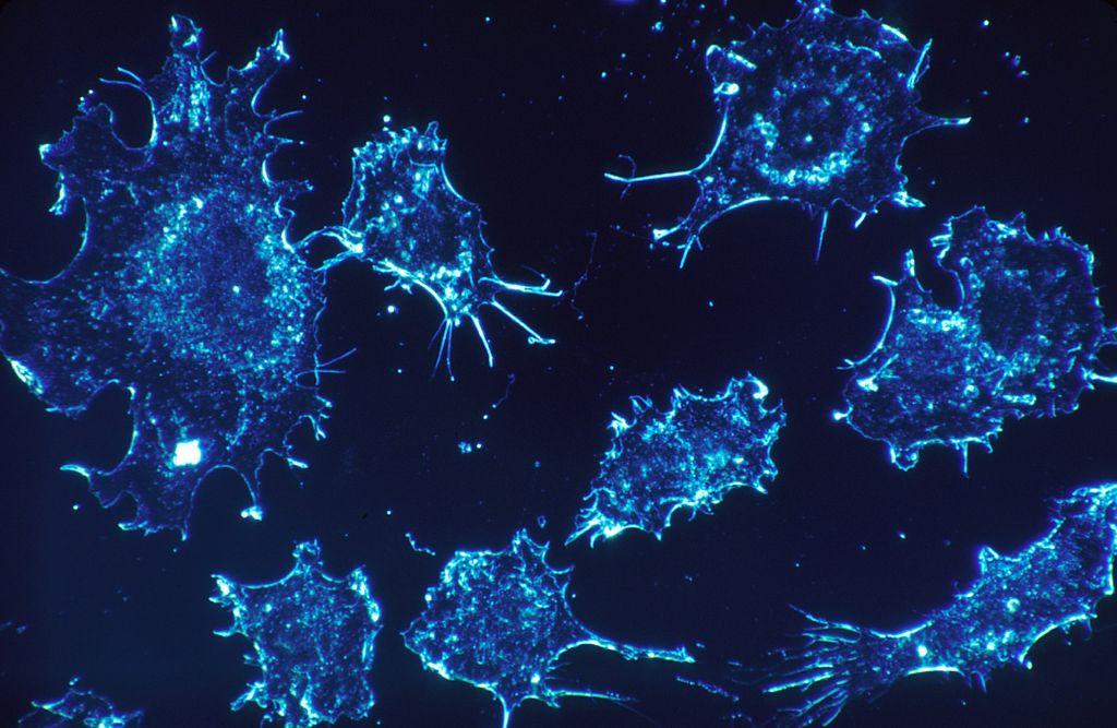 Cellules cancéreuses. Illustration. (Crédit : Pixabay)