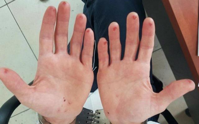 Les mains d'un homme qui a essayé d'effacer ses empreintes digitales après avoir été arrêté par la police en août 2016. (Crédit : police israélienne)