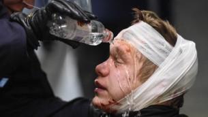 Les policiers soignent un militant blessé du Mouvement de résistance nordique (NMR) dans le centre de Stockholm, en Suède, le 12 novembre 2016. (Crédit : AFP/Jonathan Nackstrand)