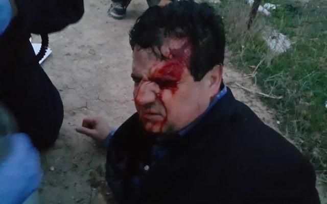 Le député arabe Ayman Odeh blessé par une balle en caoutchouc pendant des affrontements dans le village bédouin non reconnu d'Umm al-Hiran, le 18 janvier 2017. (Crédit : porte-parole de la Liste arabe unie)