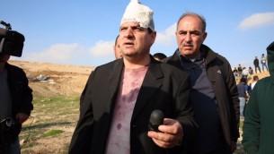 Le dirigeant de la Liste arabe unie, le député Ayman Odeh, qui a été blessé lors d'une manifestation contre les démolitions de maisons dans la ville du Néguev d'Umm al-Hiran le 18 janvier 2017. Ici, il tient la balle entourée de mousse qui l'a blessé (Crédit : Autorisation de la Liste arabe unie)