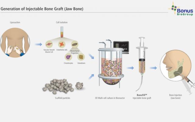 La société israélienne BonusBioGroup a mis au point un greffon liquide,  Bonofill, aux capacités d'adaptation renforcées. (Crédit: BonusBioGroup)
