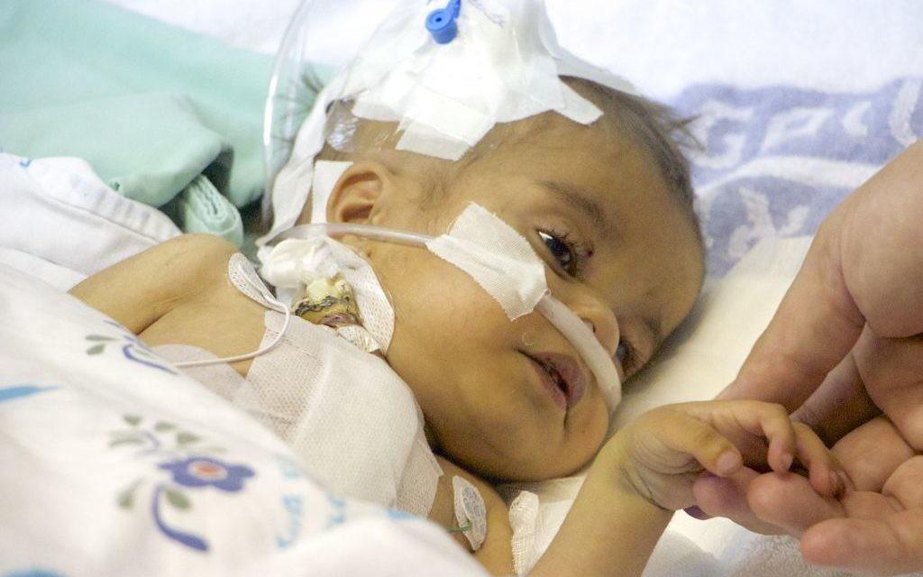 Yacub, un petit garçon de deux ans, tient la main du chirurgien cardiaque israélien qui lui a sauvé la vie (Crédit : Dov Lieber/Times of Israel)