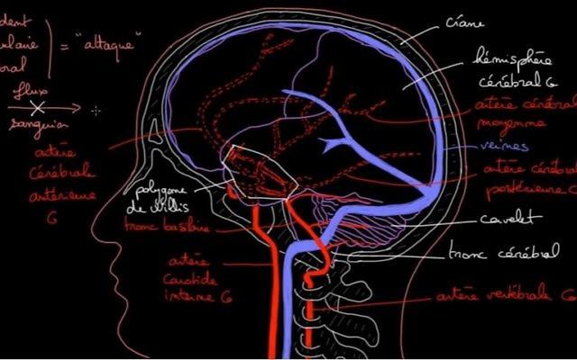 Une hémiplégie peut survenir après un accident vasculaire cérébral (AVC) (Crédit: capture d'écran/Youtube Khan Accademy)
