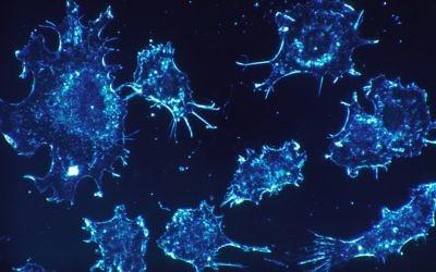 Photo d'illustration de cellules cancéreuses  (Crédit : Pixabay)