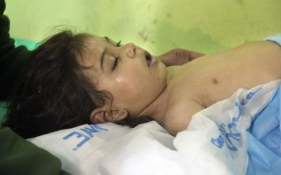 Un enfant syrien inconscient à l'hôpital de Khan Sheikhun, une ville tenue par les rebelles de la province d'Idleb, après une attaque au gaz toxique, le 4 avril 2017. (Crédit : Omar Haj Kadour/AFP)