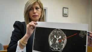 Shira Nir, l'avocate d'un adolescent israélo-américain soupçonné d'avoir passé des centaines d'appels menaçants à des institutions juives, présentant à la cour des magistrats de Rishon Lezion ce qui serait une image de la tumeur au cerveau de son client, le 30 mars 2017. (Crédit : Flash90)