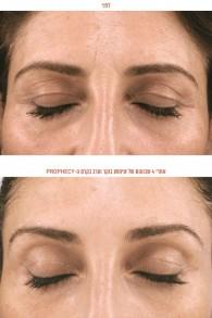 Une photo avant et après d'un modèle qui a utilisé pendant quatre semaines la crème à l'acide hyaluronique (Crédit : Autorisation)