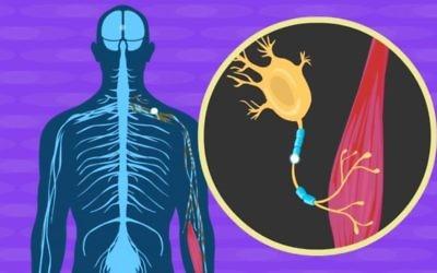 Illustration du processus neurologique à l'œuvre dans la sclérose latérale amyotrophie, dite maladie de Charcot. (Crédit : capture d'écran Moovly/YouTube)
