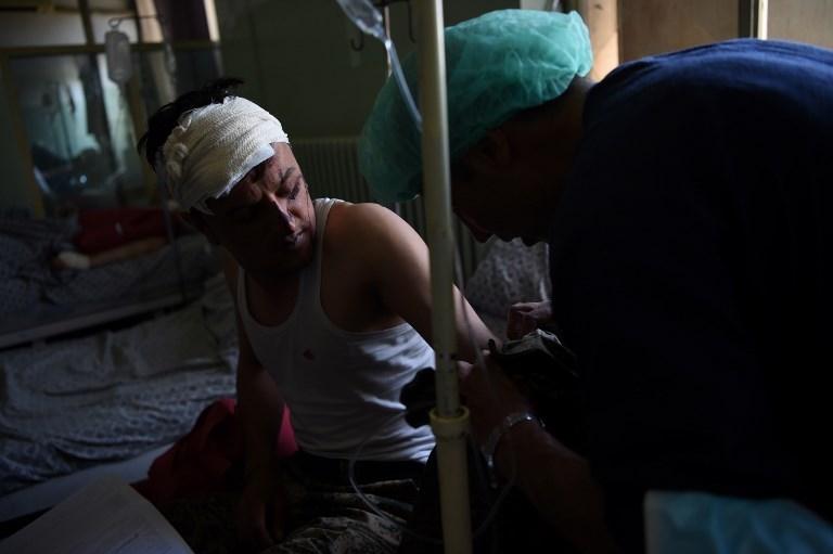 Un Afghan blessé dans un attentat suicide au camion piégé qui a tué au moins 80 personnes dans le quartier diplomatique de Kaboul, le 31 mai 2017. (Crédit : Wakil Kohsar/AFP)