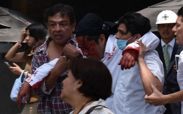 Un homme blessé après un séisme qui a touché Mexico et fait au moins 224 morts dans le centre du Mexique, le 19 septembre 2017. (Crédit : Kevin Chrisman/AFP)