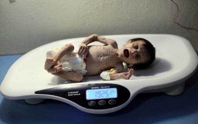 Un nourrisson syrien souffrant de malnutrition sévère est pesée dans une clinique d'Hamouria, ville contrôlée par les rebelles, dans la région orientale de la Ghouta, en périphérie de Damas, le 21 octobre 2017. (Crédit : AFP / Amer ALMOHIBANY)