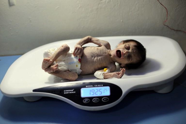 Un nourrisson syrien souffrant de malnutrition sévère est pesée dans une clinique d'Hamouria, ville contrôlée parles rebelles, dans la région orientale de la Ghouta, en périphérie de Damas, le 21 octobre 2017.  (Crédit : AFP / Amer ALMOHIBANY)