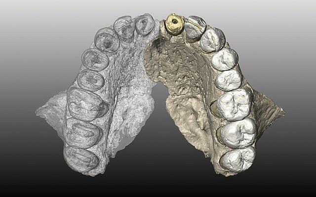 L'os maxillaire reconstruit en micro-images CT à partir de la mâchoire (supérieure) de l'hominien Misliya-1. (Crédit : Gerhard Weber, Université de Vienne, Autriche)