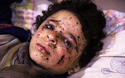 Le jeune Omar, âgé de dix ans, blessé lors d'une frappe aérienne qui a tué plusieurs membres de sa famille à Otaybah, chez eux, est soigné dans un hôpital de fortune situé dans l'enclave rebelle de Ghouta Est, en Syrie, le 25 février 2018. (AFP PHOTO / AMER ALMOHIBANY)