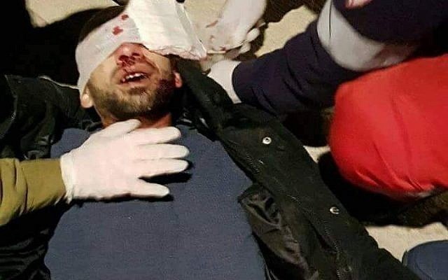 Un Palestinien reçoit des soins médicaux de la part des soldats israéliens après avoir reçu une pierre jetée par des habitants d'implantation à la tête, près de l'entrée de Naplouse, le 5 février 2018 (Autorisation)