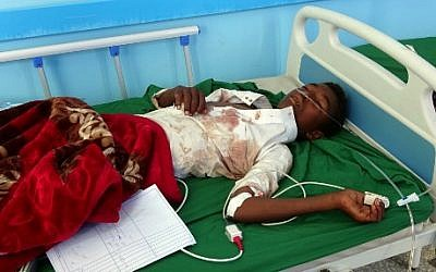 Un garçon yéménite, blessé lors d'un raid aérien sur une fête de mariage au Yémen, reçoit un traitement dans un hôpital de la province du Hajj au Yémen le 23 avril 2018. (Crédit : AFP/ESSA AHMED)