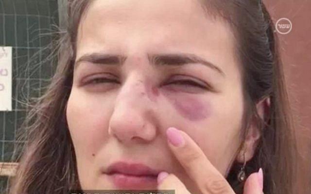 Tova Orlero montre les blessures résultant d'une agression entraînée par un coup de klaxon dans la ville d'Afula, dans le nord du pays, le 29 juin 2018 (Capture d'écran : Dixième chaîne)