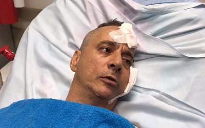 Aharon Bucharis se souvient du moment où son domicile de Sdérot a été frappé par une roquette, le 14 juillet 2018 (Capture d'écran : Autorisation du porte-parole de l'hôpital Barzilai)