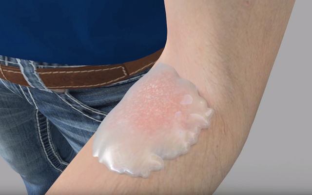 Les chercheurs du Technion ont soigné des infections fongiques en utilisant une bactérie qui vit dans le sol et qui survit dans un gel préparé (Capture d'écran : Technion)