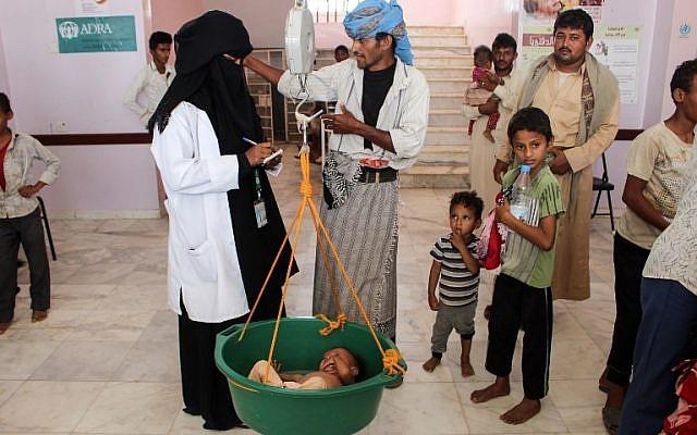 Un enfant yéménite souffrant de malnutrition est pesé dans un hôpital de la province du nord Hajjah, dans le quartier d'Abs, le  19 septembre 2018  (Crédit : . / AFP PHOTO)