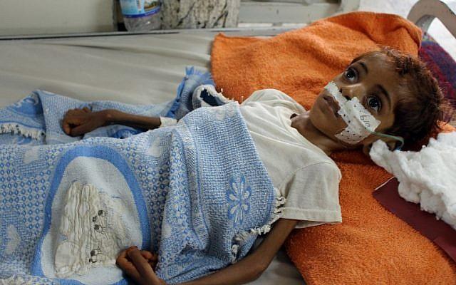 Un enfant yéménite souffrant de malnutrition est soigné dans un hôpital de la province du nord Hajjah, dans le quartier d'Abs, le  19 septembre 2018  (Crédit : . / AFP PHOTO)