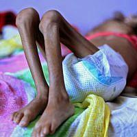 Un enfant yéménite souffrant de malnutrition à l'hôpital de Sanaa, le 6 octobre  2018. (Crédit ! MOHAMMED HUWAIS / AFP)