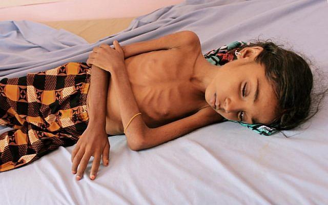 Un enfant yéménite souffrant de malnutrition dans un hôpital de Hajjah,  le 25 octobre 2018. (Crédit : ESSA AHMED / AFP)
