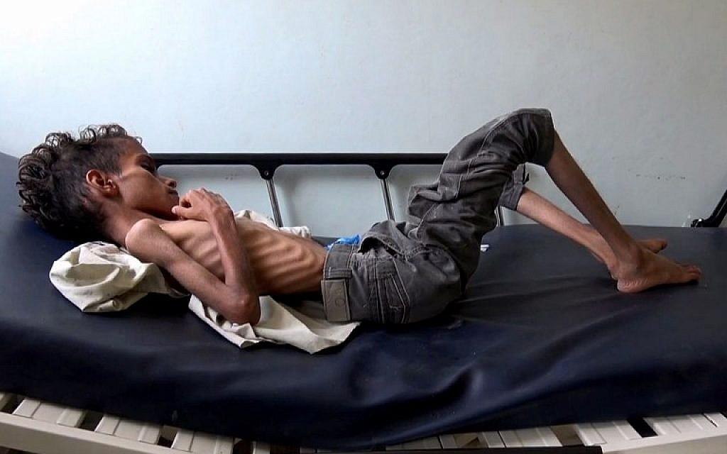 Ghazi Saleh, 8 kilos pour 10 ans, dans un lit d'hôpital de Taez au Yémén, le 19 novembre 2018. (Crédit : Marzooq AL-JABIRY / AFP)