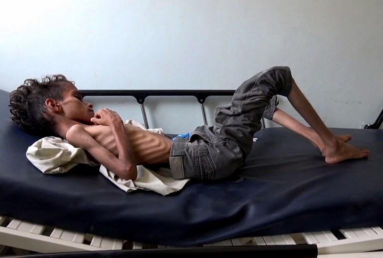 Ghazi Saleh 8 kilos pour 10 ans dans un lit d'hôpital de Taez au Yémén le 19 novembre 2018