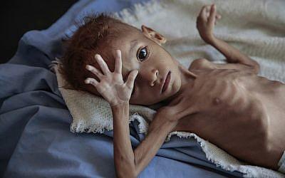 Un enfant souffrant de malnutrition pris en charge à l'hôpital Aslam Health Center, à Hajjah, au Yemen, le 1 octobre 2018. (Crédit : AP/Hani Mohammed)