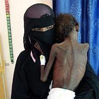 Une femme yéménite Nadia Nahari porte son fils de 5 ans Abdelrahman Manhash, souffrant de malnutrition sévère, à l'hoital de Khokha au Yemen., (Crédit : AFP)