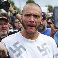 Le sang coule de la lèvre d'un homme portant un tee-shirt avec des croix gammées après avoir été frappé par un manifestant devant un auditorium de l'Université de Floride où le nationaliste blanc Richard Spencer se préparait à parler, le jeudi 19 octobre 2017 à Gainesville, en Floride. (Will Vragovic/Tampa Bay Times via AP)