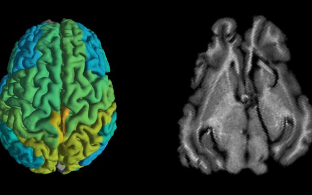 Un scan d'IRM standard de cochon, à droite, et un nouveau scan d'IRM montant des différences dans la composition moléculaire des différentes parties du cerveau (Shir Filo/Hebrew University)