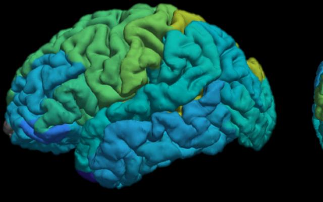 La nouvelle technique d'IRM développée par des chercheurs de l'Université hébraïque de Jérusalem fournit aux utilisateurs une carte moléculaire des différentes zones du cerveau (Shir Filo/ Université hébraïque) Illustration.