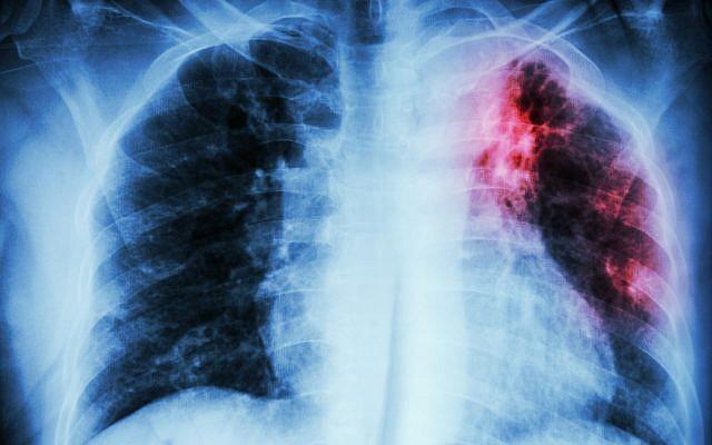 Image de la poitrine d'une patient atteint d'une tuberculose pulmonaire. (stockdevil; iStock par Getty Images)