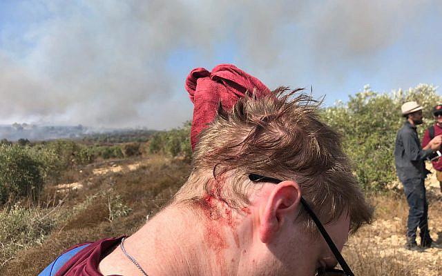 Un volontaire de Yesh Din avec les blessures subies lors d'une altercation avec les habitants d'implantations en Cisjordanie le 16 octobre 2019. (Crédit : Yesh Din / Lexie Botzum)
