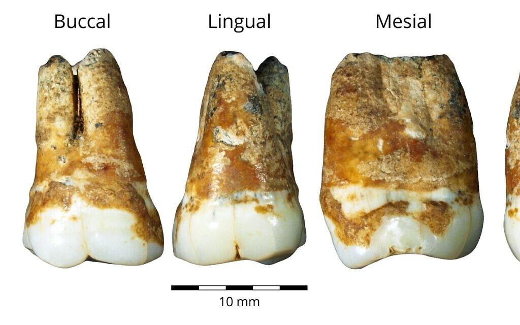 Molaires supérieures et inférieures trouvées dans la grotte de Manot, vieilles de 38 000 ans et qui montrent un mélange de caractéristiques (Crédit : Dr. Rachel Sarig)