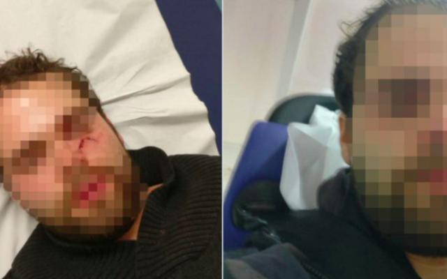 Yogev B. attaqué dans le métro parisien, le 9 décembre 2019, dans un wagon de la station Château d'eau sur la ligne 4 (Crédit : autorisation)