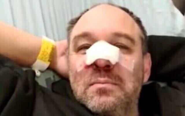 Capture d'écran d'une vidéo montrant le docteur Michael Morris-Reich après avoir été agressé, a-t-il clamé, par des partisans du Premier ministre Benjamin Netanyahu à Jérusalem, le 7 décembre 2019 (Crédit : Douzième chaîne)