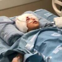 Un garçon de  neuf ans blessé à la tête par une balle au bout en mousse durant une opération de police à Issawiya, le 16 février 2020. (Capture d'écran : Treizième chaîne)