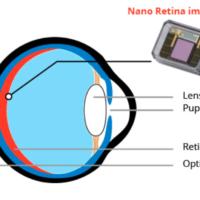 Schéma du dispositif NR600 de la société israélienne Nano Retina. (Crédit : Nano Retina Ltd.)