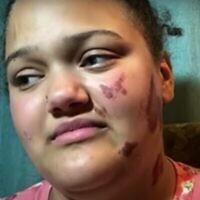 Althea Bernstein aurait été victime d'une attaque incendiaire alors qu'elle se trouvait dans sa voiture, le 24 juin 2020. (Capture écran/YouTube)