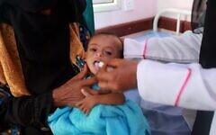 Une infirmière s'occupe d'un enfant yéménite souffrant de malnutrition, dans un centre de traitement dans la province de Hajjah, dans le nord du Yémen, le 5 juillet 2020. (ESSA AHMED / AFP)