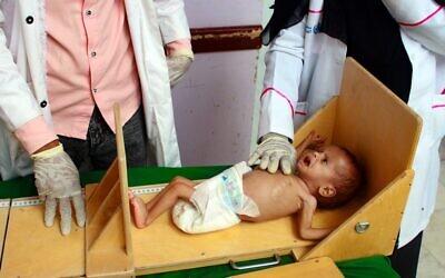 Un enfant yéménite souffrant de malnutrition est mesuré dans un centre de traitement dans la province de Hajjah, dans le nord du Yémen, le 5 juillet 2020. (ESSA AHMED / AFP)