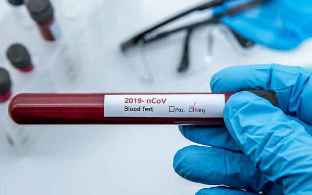 Un échantillon de sang négatif au coronavirus. (iStock)