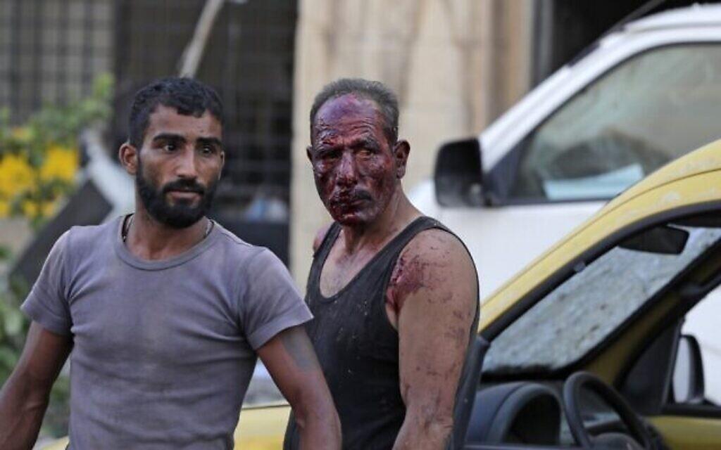 Des blessés marchent aux abords du site de l'explosion survenue à Beyrouth, le 4 août 2020. (Crédit : ANWAR AMRO / AFP)