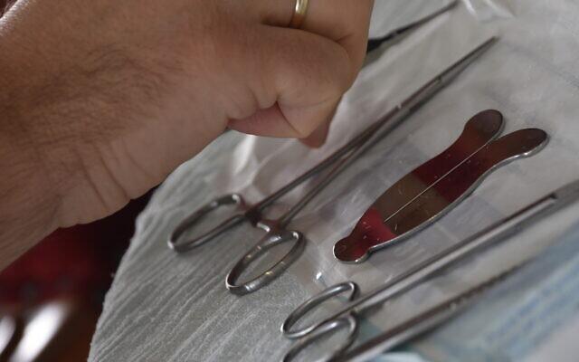 Illustration : Un mohel dispose des instruments pour une cérémonie de circoncision. (Getty Images via JTA)