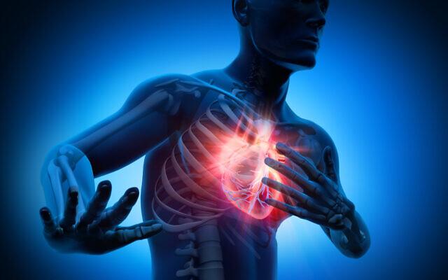 Rendu 3D d'un homme ayant une crise cardiaque. (iStock)