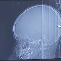 Image radiographique d'une balle logée dans le cerveau d'un garçon de 9 ans à l'hôpital universitaire Hadassah de Jérusalem, le 31 juillet 2020. (Avec l'aimable autorisation de l'hôpital universitaire Hadassah)